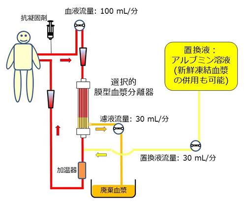 選択的血漿交換の回路例