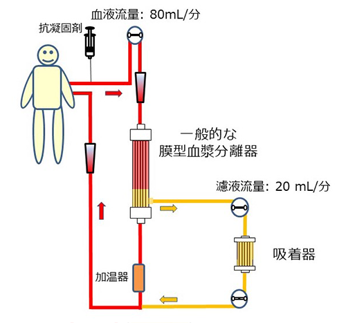 免疫吸着法の回路例