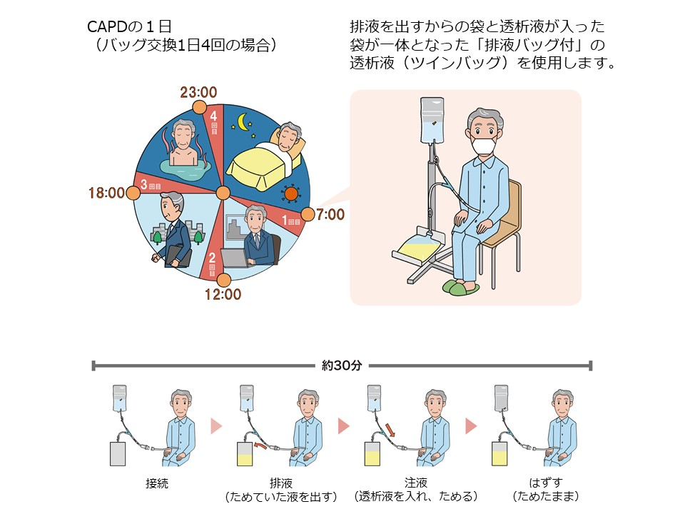 連続携行式腹膜透析